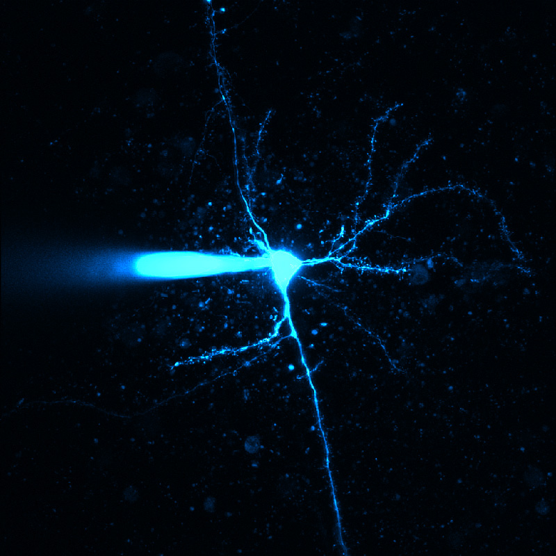 Establishing a patch in a neuron using our Bergamo<sup>&reg;</sup> II system. (Courtesy of the 2016 Neurobiology Course at the Marine Biological Laboratory, Woods Hole, MA.)