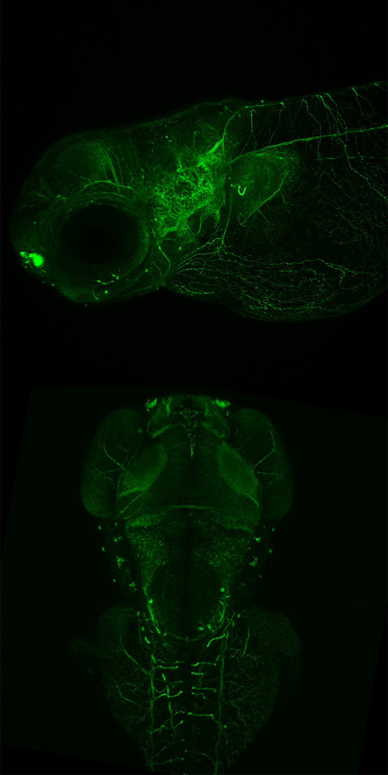 Dorsal and lateral maximum intensity projections of zebrafish embryos, 48 h post fertilization, showing developing neurons. (Courtesy of Aminah Giousoh and Dr. Robert Bryson-Richardson, School of Biological Sciences, Monash University, Victoria, Australia.)