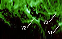 Double-Clad Coupler Fluoresence Image